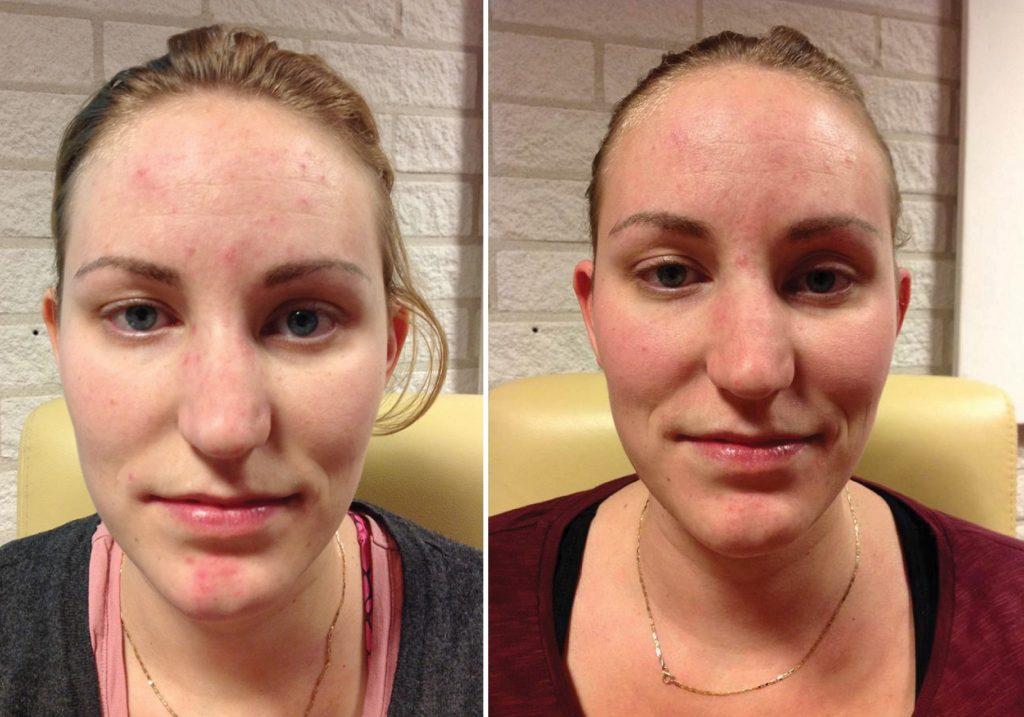 Bioptron behandeling Acne