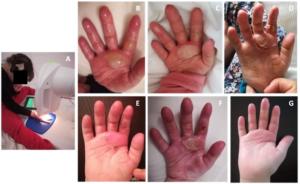 Bioptron hand